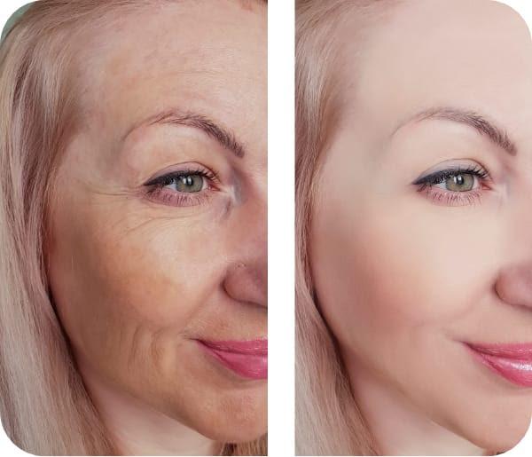 Hair and Beauty Academy Rimpelverwijdering Gezicht